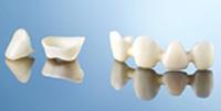 修復物や歯のないところの治療法についてのカウンセリング
