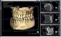 歯科用CTへのこだわり