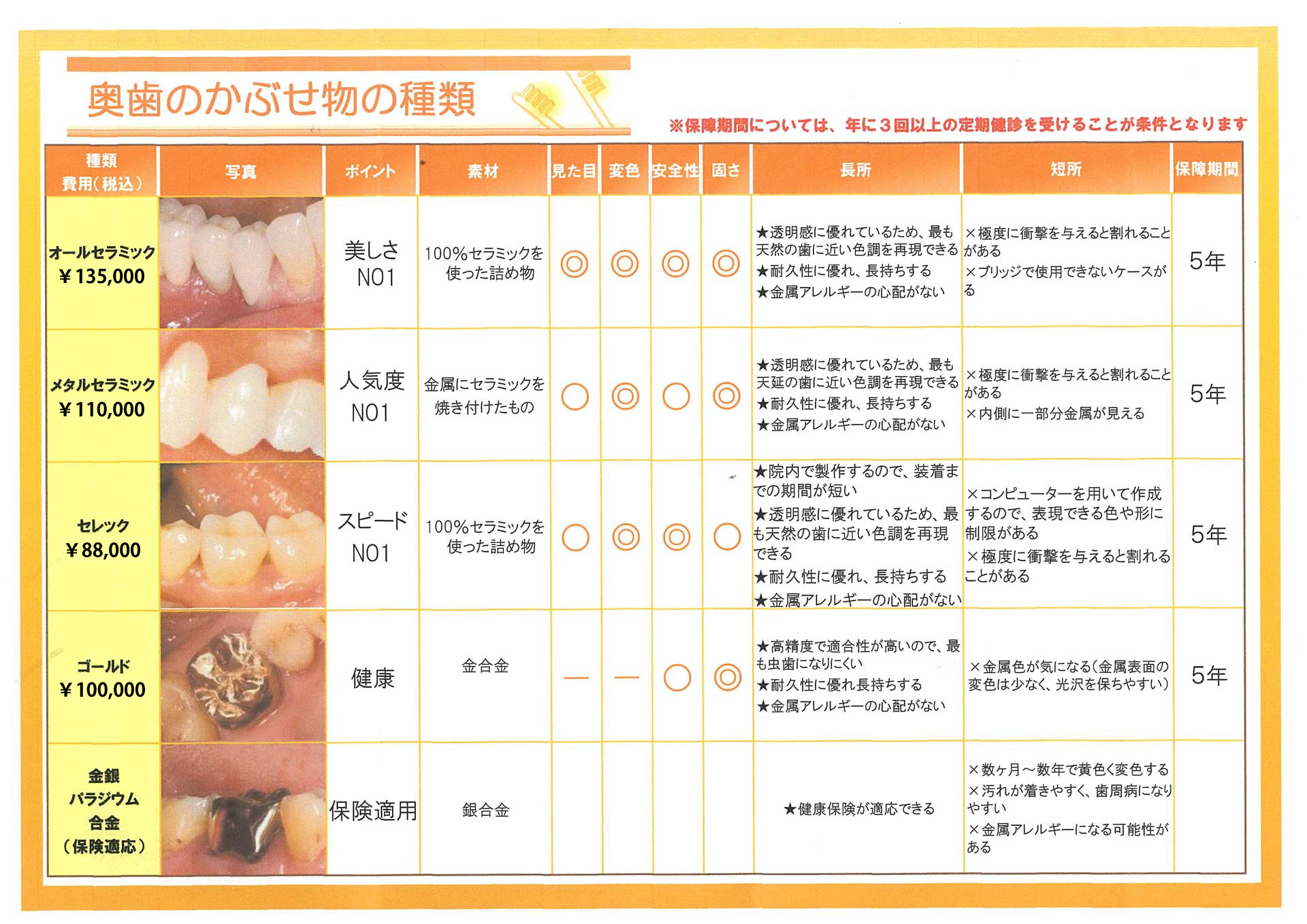 臼歯の被せ物の種類