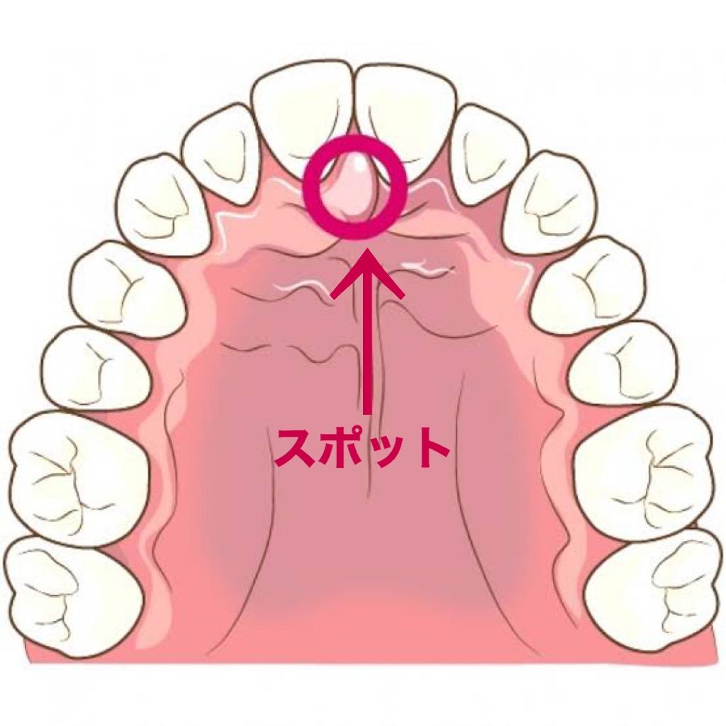 大阪市阿倍野区の歯医者~舌の位置はどこに?~ | うえたに歯科